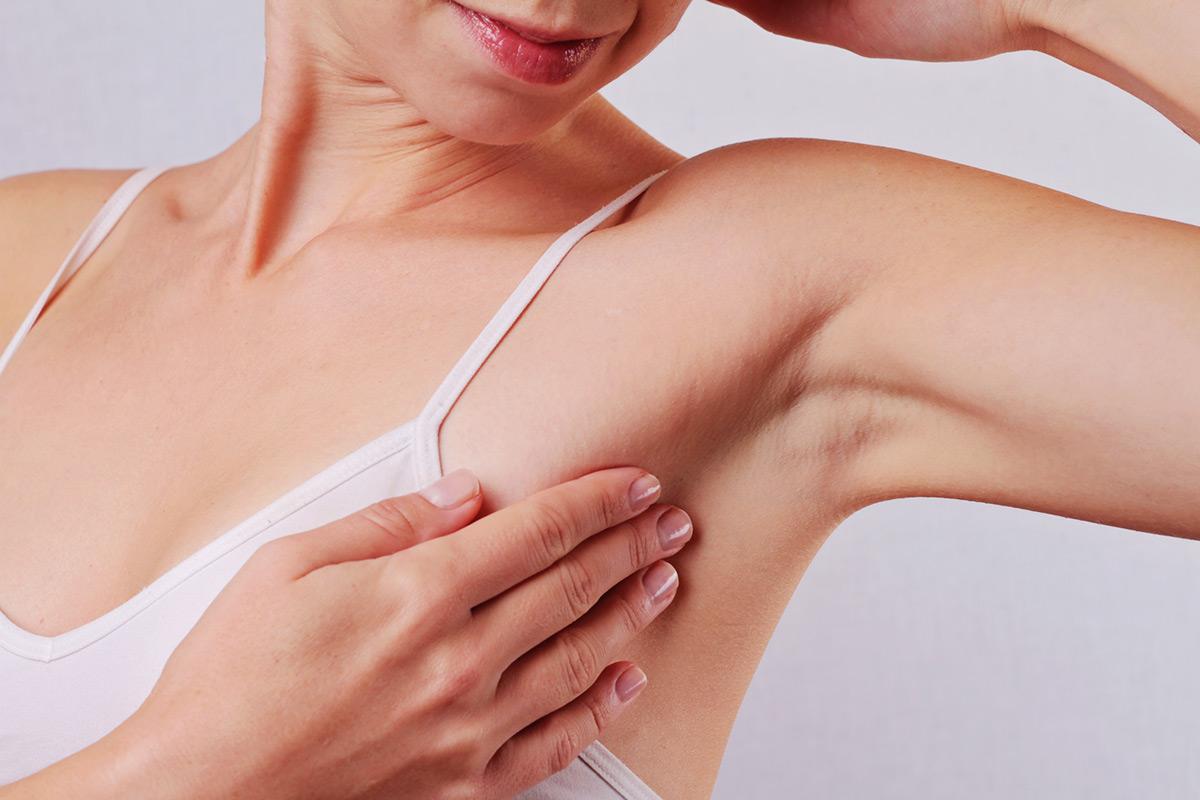 Koltuk Altı Botoksu İle Terlemeden Kurtulun